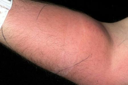 Un joven se inyecta su semen en el brazo para intentar curar su dolor de espalda