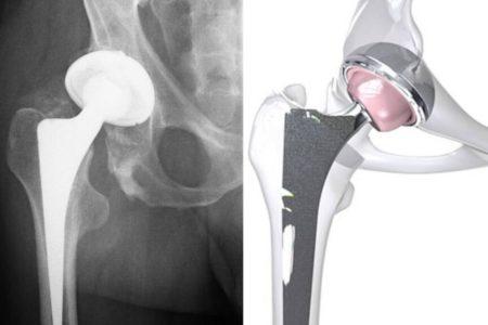 Prótesis de cadera antes de cumplir los 40: los motivos de la nueva 'epidemia' mundial