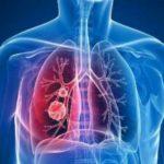 Golpe español al cáncer de pulmón:  prometedora terapia sin efectos adversos