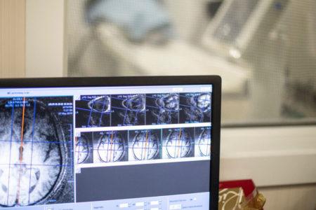 Abordan por primera vez en el mundo la demencia asociada a la enfermedad de Parkinson con ultrasonidos